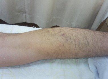 大腿二頭筋の肉離れ、下腿部に内出血が下りて来ている