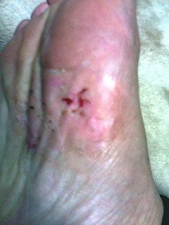 水虫治療の3日目