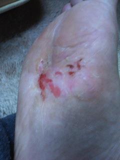 水虫治療の6日目の写真