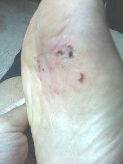 水虫治療の14日目の写真