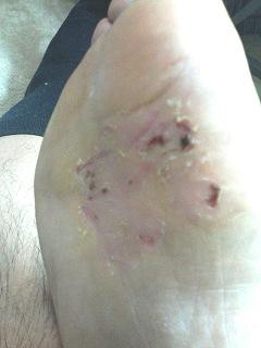 水虫治療の15日目の写真