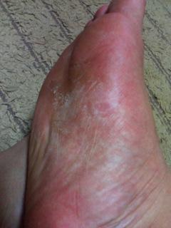 水虫治療の7日目の写真