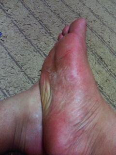 水虫治療の20日目の写真
