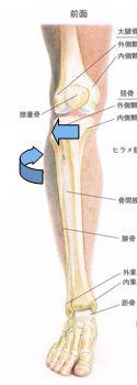 脛骨外旋変位